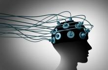 Electrodos implantados en una cabeza.